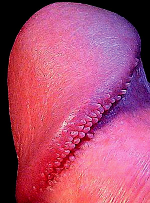 Papillae coronae glandis - hirsuties papillaris penis