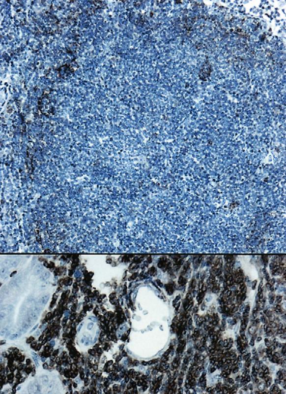 (a). Rozložení dendritických retikulárních buněk v nádorovém folikulu. (CD23, 50krát) (b). V dolní části obrázku je pozitivní nález s protilátkou CD20 u FL. (400krát)