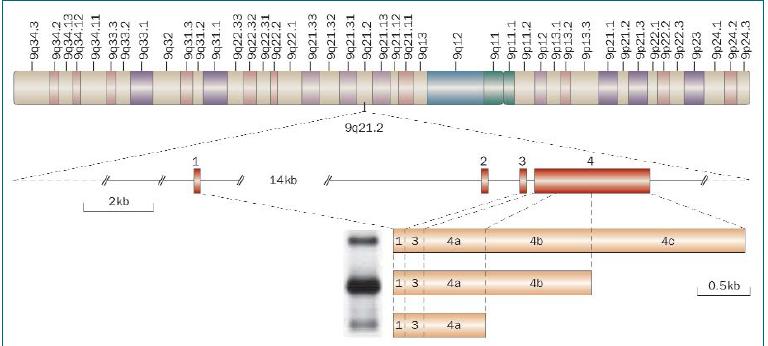 Schéma 1. Struktura transkripční jednotky PCA3. Gen dekódující PCA3 mapuje chromozom 9q21-22 a je tvořen čtyřmi exony. Alternativní polyadenylace na třech různých pozicích v exonu 4 (označeny jako 4a–4c) vede ke vzniku tří transkriptů rozdílných velikostí. Dochází k alternativnímu spojování, kdy je vynechán exon 2 (přítomný pouze u 5 % transkriptů). Nejčastěji se vyskytující transkript obsahuje exony 1, 3, 4a a 4b [6].
