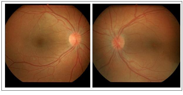 Nález na fundu pravého a levého oka 20 dní po zahájení terapie.