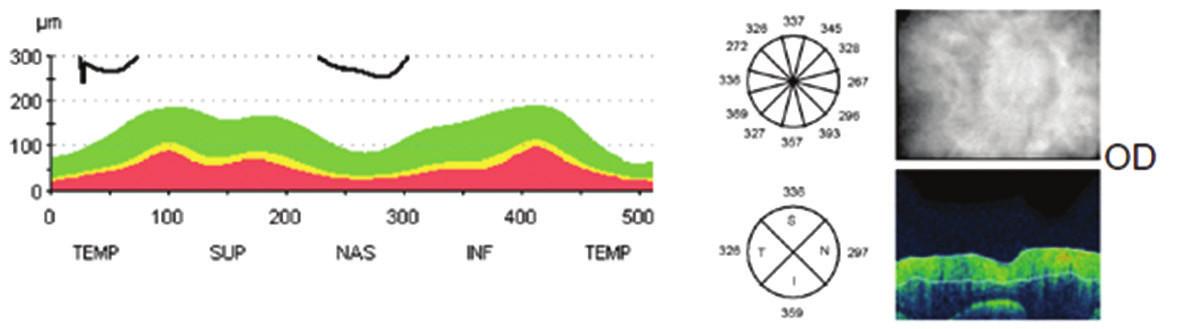 Vstupní měření vrstvy nervových vláken sítnice k monitoraci edému papily zrakového nervu původně na optické koherenční tomografii Stratus Zeiss na pravém oku