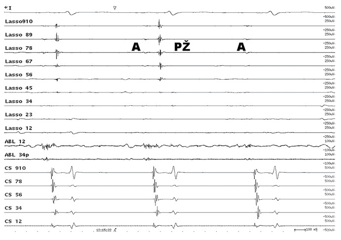 Intrakardiální EKG záznam elektrické izolace plicní žíly.  Cirkulární vyšetřovací Lasso katétr snímá elektrickou aktivitu ze síně (A) a pravé horní plicní žíly (PŽ). Po elektrické izolaci plicní žíly zůstává elektrická aktivita síně (A) a mizí elektrická aktivita plicní žíly (PŽ).  Lasso – cirkulární katétr, který snímá elektrické potenciály v ústí plicní žíly. ABL – elektrické potenciály v ablačním katétru. CS – elektrická aktivita z levostranných srdečních oddílů v koronárním sinu
