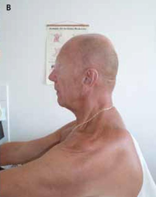 Obr. 4b) Pohled se strany – atrofie svalů na krku (včetně m. trapezius) s nevelkou kyfózou horního krčního úseku.