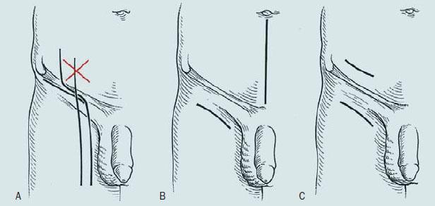 Klasická a modifikovaná lymfadenektomie (Catalona).