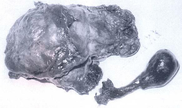 Odstraněná ledvina s nádorem a činkovitým trombem (hladina IV, operace v CPB).
