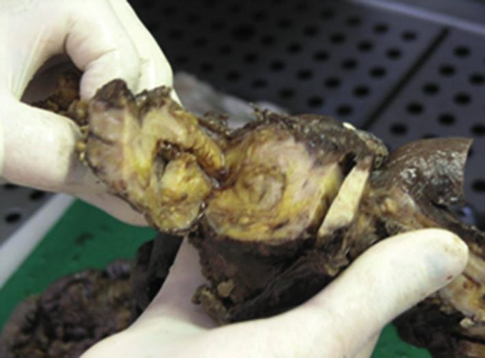 Makroskopické pitevné nálezy poukazujú na rozsah a hrúbku osifikácie zostávajúcej časti čreva Fig. 7: Macroscopic autopsy findings indicate the extent and thickness of ossification of the residual part of the intestine