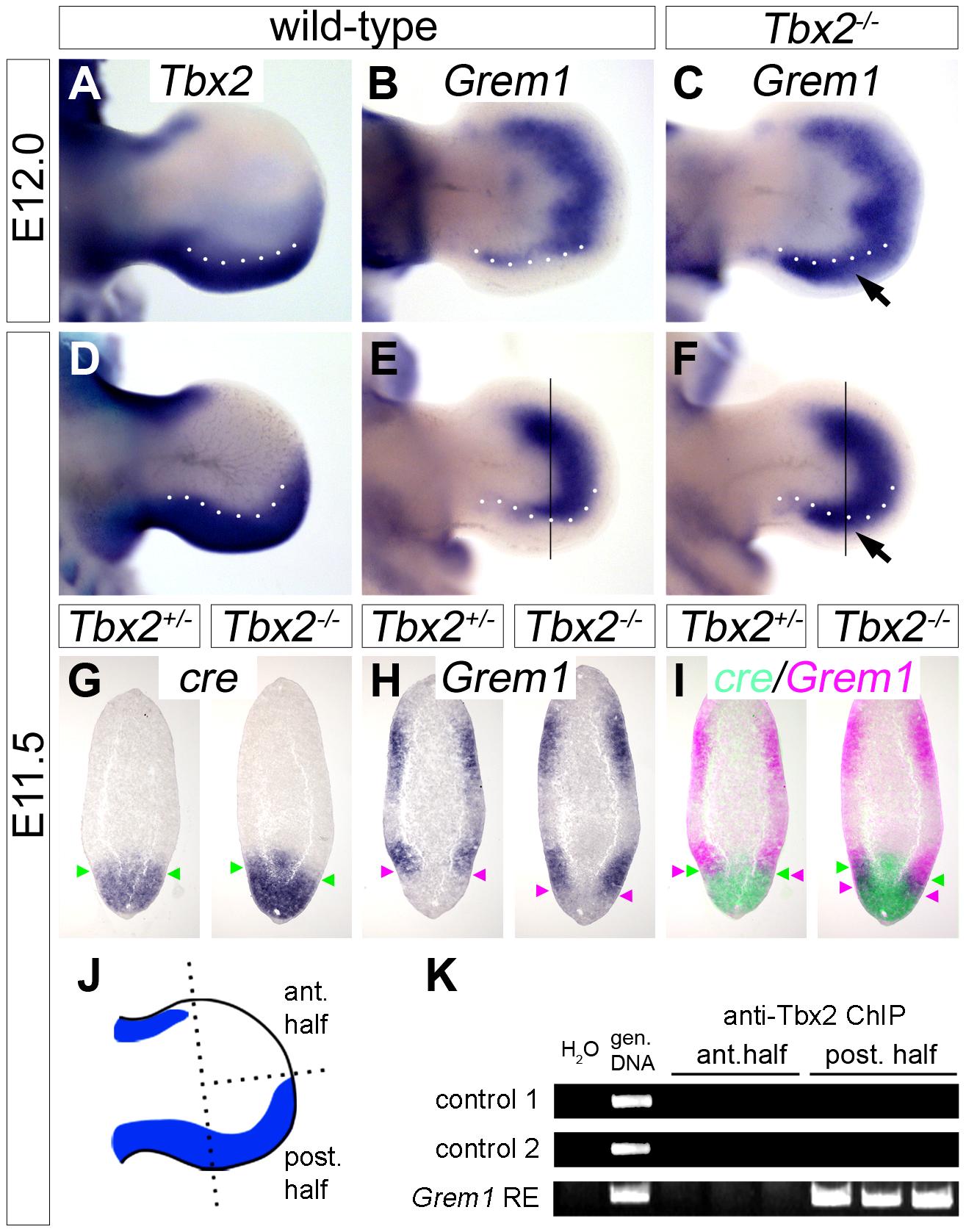 <i>Tbx2</i> directly represses <i>Grem1</i> expression in the posterior hindlimb mesenchyme.