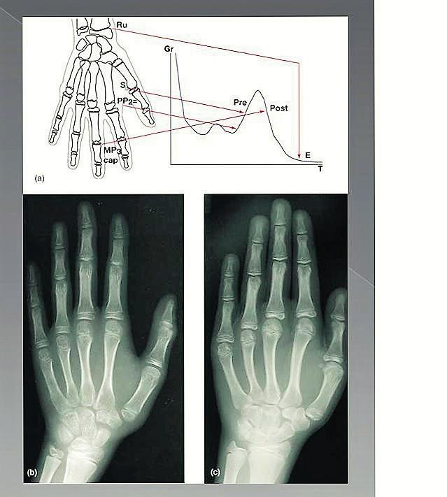 RTG snímky zápěstí, ruky: na RTG posuzujeme distální epifýzu radia a ulny, třetí a pátý metakarp, proximální, střední a distální falangy prvního, třetího a pátého prstu a sedm karpálních kostí. Na obrázku je graf schematicky znázorňující růst (Gr) v čase (T) (a) Rentgenový snímek zápěstí – ruky se využívá k sestrojení růstové křivky. Sezamová kůstka (S) palce začíná obvykle kalcifikovat v průběhu akcelerační fáze pubertálního růstového spurtu (PRE). Protože růst bude ještě výrazně pokračovat, není tato doba vhodná pro zavedení implantátu. Uzavírání středních falangů prostředníčku ruky (MP3cap) obvykle nastává po maximálním růstovém spurtu a indikuje zpomalení pubertálního růstového spurtu (postpubertální POST). Tento jev koreluje u dívek se začátkem menstruace a u chlapců se změnou hlasu. Od doby, kdy pubertální růst je z většiny ukončen, je možné začít uvažovat o zavedení implantátu. (Op Heij, G. D., Opdebeeck, H., Van Steenberghe, D., Quirynen, M.: Age as compromising factor for implant insertion. Periodontol. 2000, 2003 , roč. 33, č. 1, s. 172–184) (b) Rentgenový snímek zápěstí dítěte. PP2 = vývoj kosti je v počátečním stadiu růstu (c) Rentgenový snímek zápěstí dítěte. Mpcap = indikuje, že maximální rychlost růstu je ukončena, ale skletální růst ještě není ukončen a erupce zubů je tak možná