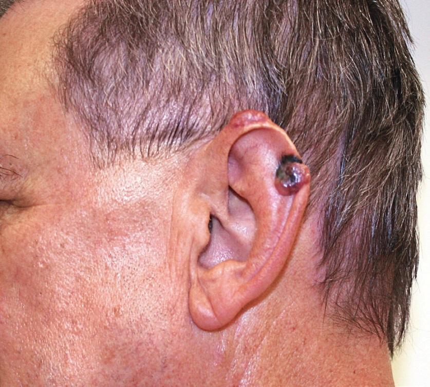 Pacient s melanomem ušního boltce – před operací.