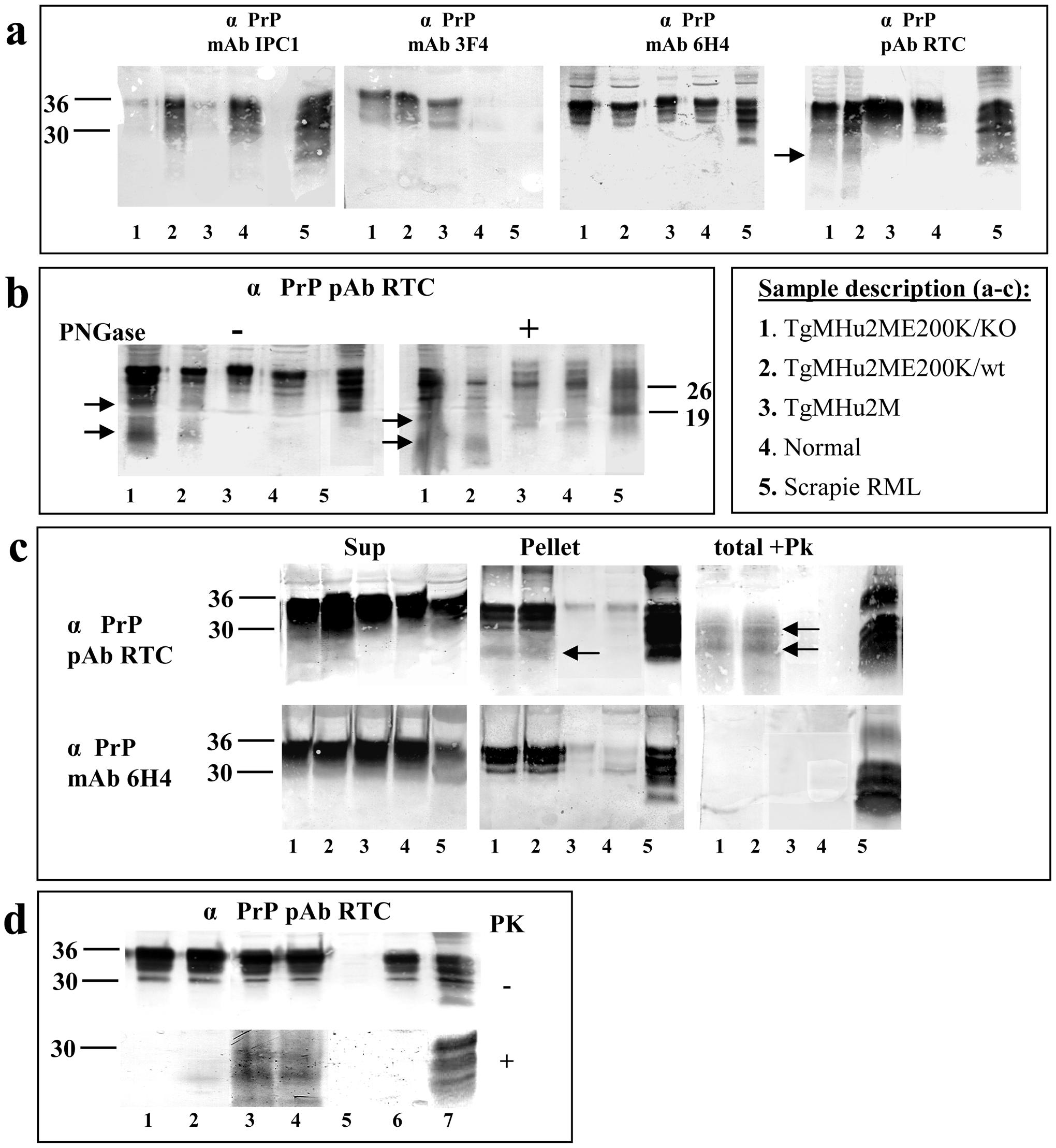 Biochemical Characterization of PrP in TgMHu2ME199K mice.
