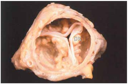"""""""Senilní"""" aortální stenóza chlopně s 3 cípy a extrémními dystrofickými kalcifikacemi cípů ve vztahu k věku."""