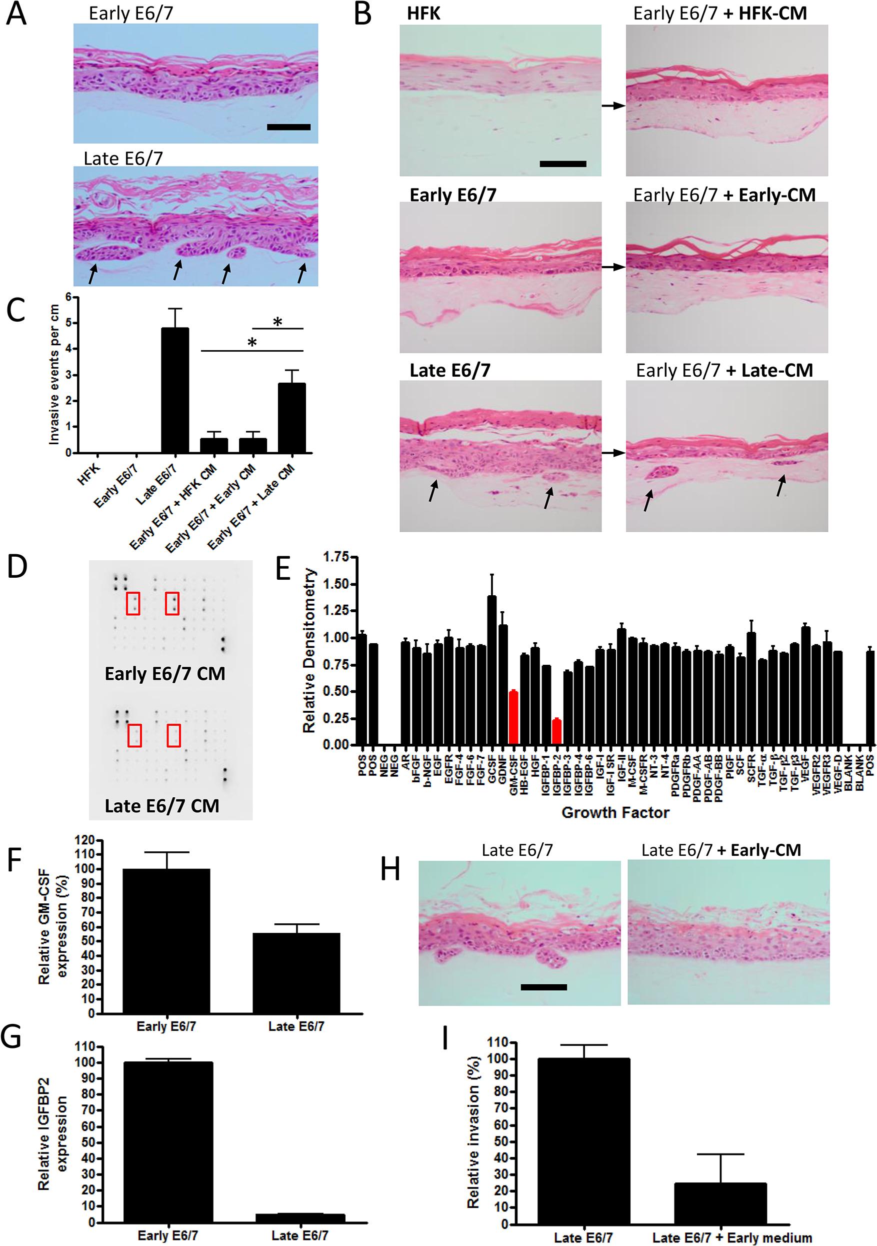 Prolonged passage of HPV16 E6/7 immortalised keratinocytes generates an invasive epithelium.
