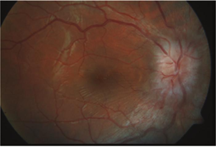 Zlepšující se nález s ustupujícím edémem terče zrakového nervu na pravém oku  po několika týdnech léčby