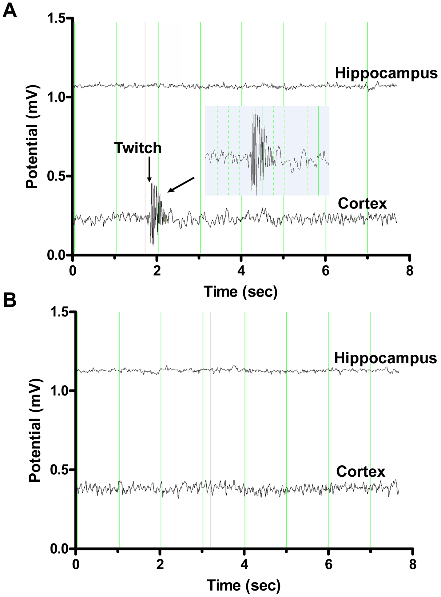 Representative electroencephalography (EEG) recordings from double deficient <i>Neu4<sup>−/−</sup>;Hexa<sup>−/−</sup></i> and single-deficient <i>Hexa</i><sup>−/−</sup> mice.