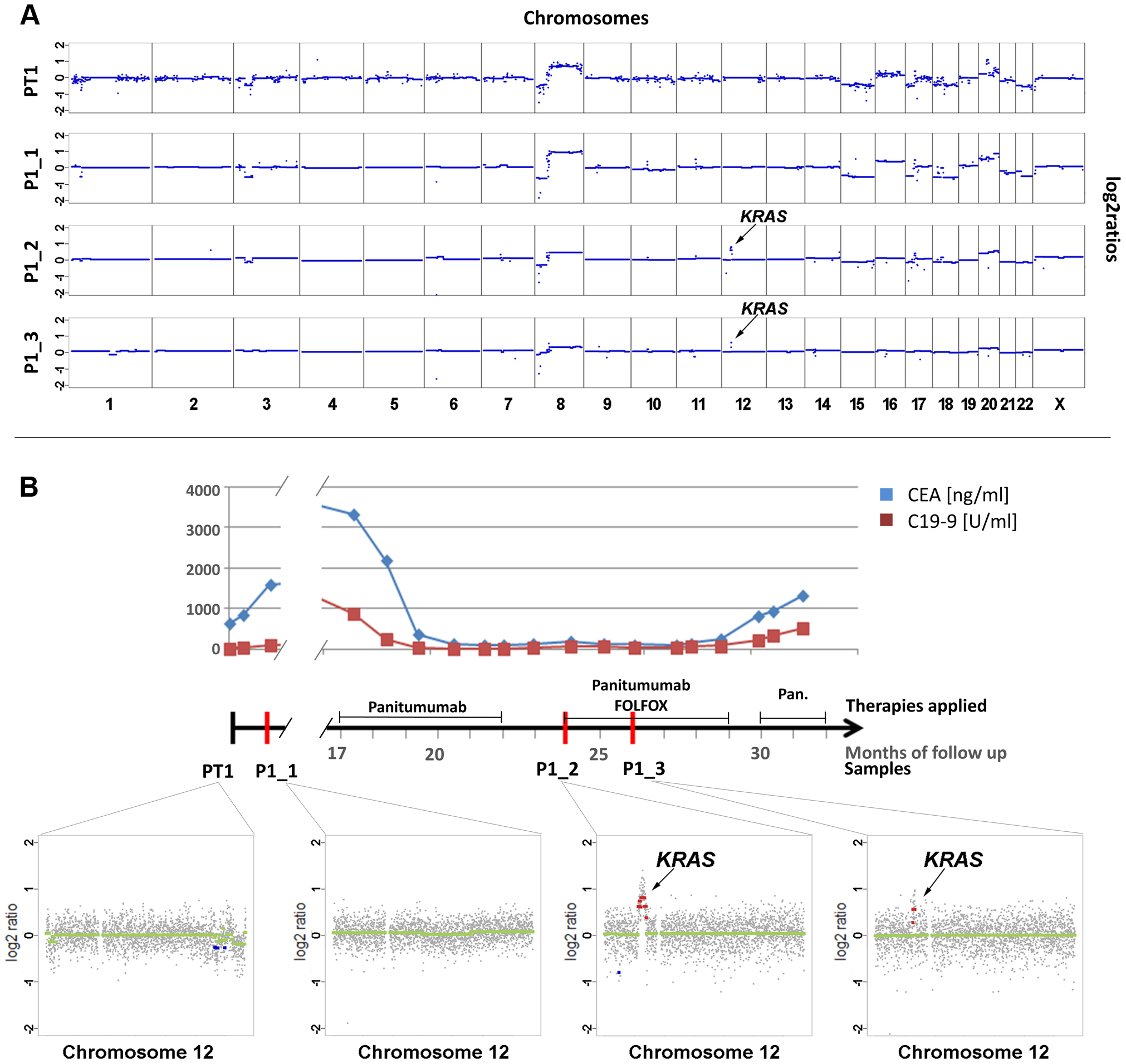 Emergence of <i>KRAS</i> amplification during panitumumab therapy in patient #1.