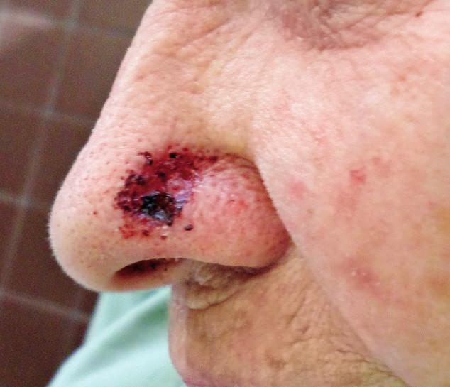 Tumorous infiltration of the nasal ala