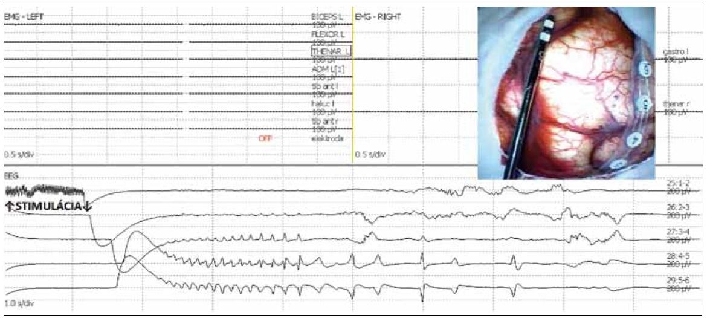 Obr. 3a) Následné výboje (afterdischarges) po bipolárnej stimulácii 50 Hz v oblasti precentrálneho gýru. Nedošlo k vyvolaniu motorickej odpovede, bez rozvoja klinického epileptického záchvatu. V elektrokortikografií (ECoG) zaznamenané spontánne pretrvávajúce následné výboje (self sustained afterdischarges) ustúpili spontánne.