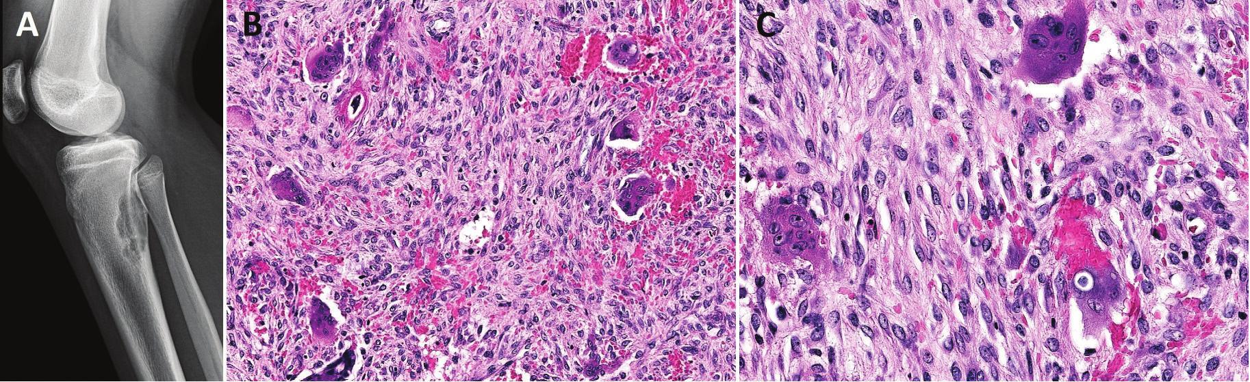 Neosifikující fibrom/metafyzární kostní defekt.