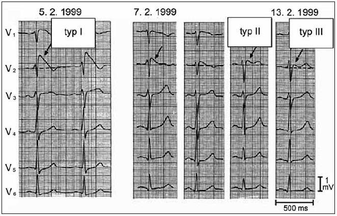 Jednotlivé typy EKG obrazu zaznamenané u pacienta s Brugada syndromem během několika dní. S dovolením převzato z citace [13].
