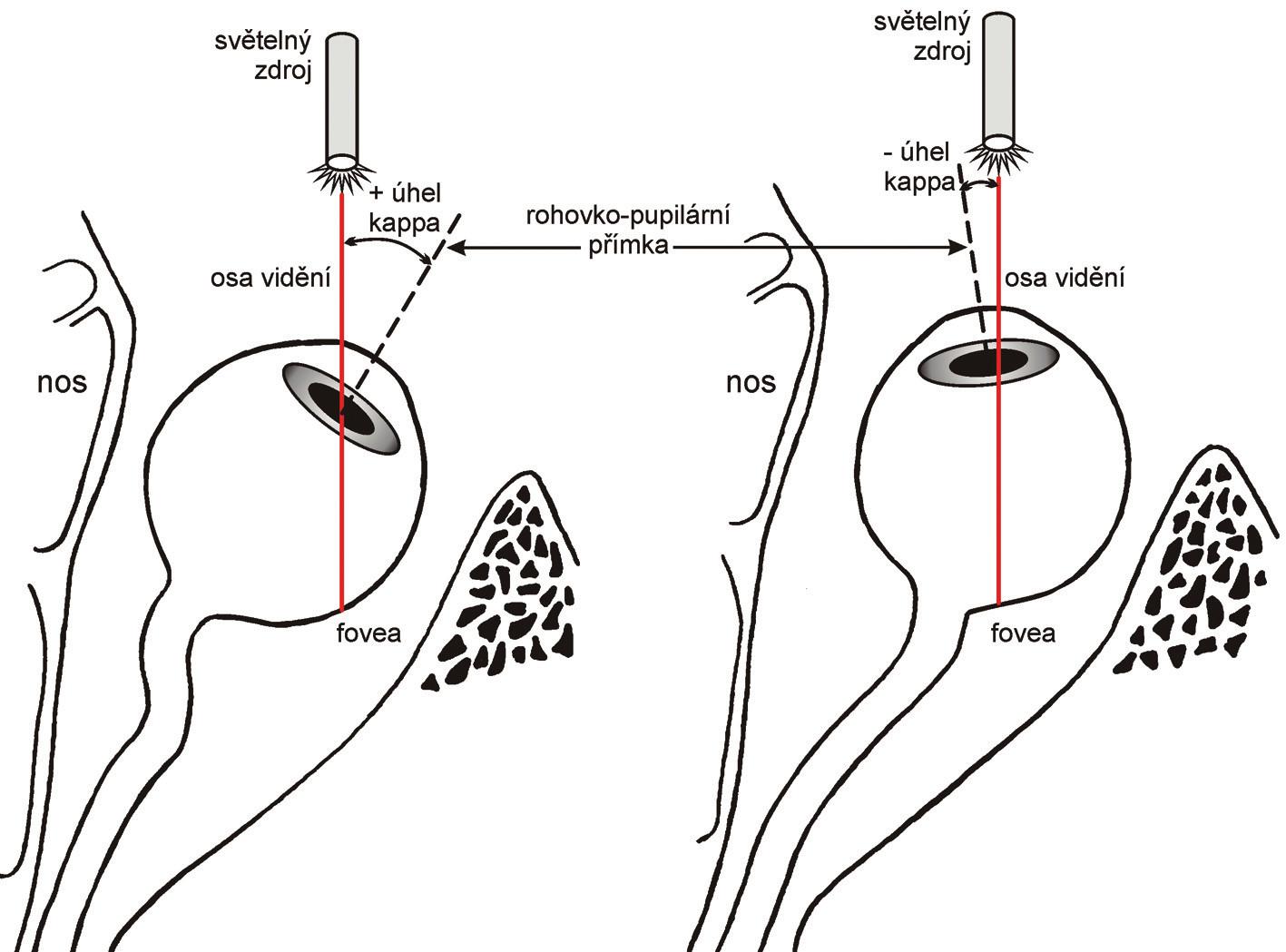 Schematické zobrazení pozitivního a negativního úhlu kappa