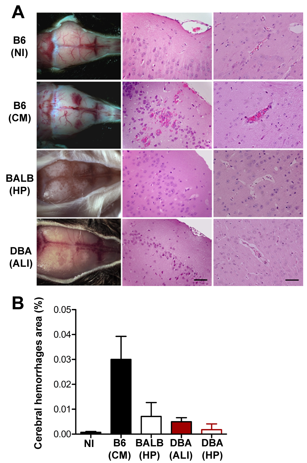 Infection of DBA/2 with <i>P. berghei</i> ANKA does not cause brain damage.