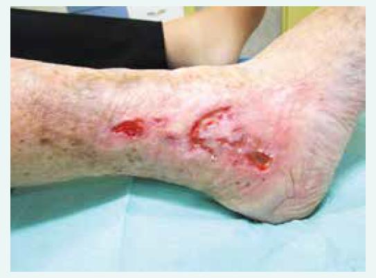 1. Bércový vřed žilní etiologie, na obrázku zachycena atrofie podkoží, depozita hemosiderinu a venektázie