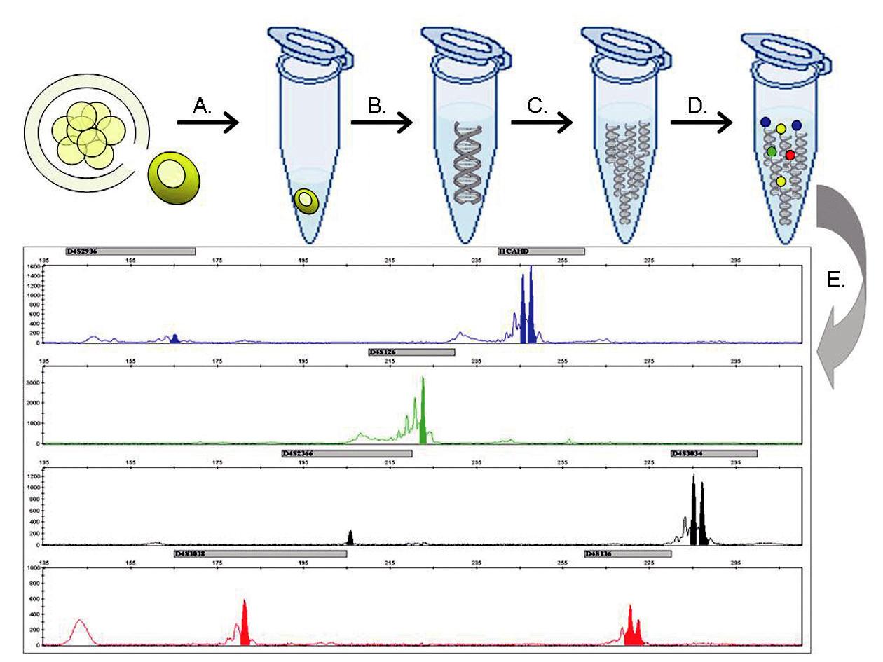 Metodický postup molekulárně genetické PGH: (A) Biopsií je z embrya 72 hodin po fertilizaci odebrána buňka a přenesena do lyzačního roztoku. (B) Genom jediné buňky je uvolněn z jádra a (C) mnohonásobně namnožen v procesu celogenomové amplifikace. (D) Produkty celogenomové amplifikace jsou následně podrobeny multiplexní fluorescenční PCR reakci, kde se specificky amplifikují sekvence markerů ve vazbě k vyšetřovanému genu. (E) Fragmentační analýzou pomocí kapilární elektroforézy je určen genotyp vyšetřovaného embrya.
