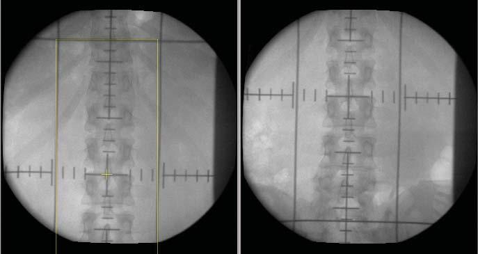 Simulační snímky adjuvantní radioterapie oblasti paraaortálních břišních uzlin u pacienta se seminomem klinického stadia I (kraniální a kaudální hranice protilehlých polí).