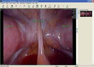 Snímek z laparoskopie - uterus duplex.
