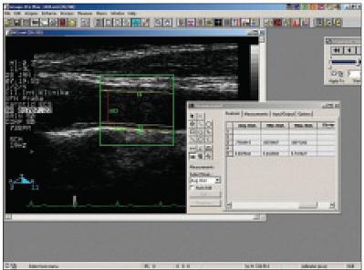 Měření intimomediální šíře a průměru a. carotis communis v podélném řezu způsobu B ultrazvukového off-line pomocí softwaru Image-Pro Plus 4.0.