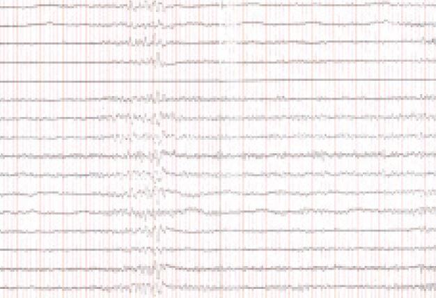 EEG v septembri roku 2006 – ojedinele τ-aktivita – obraz len miernej abnormality.