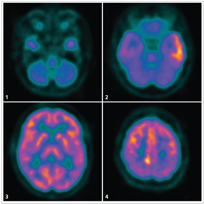 Fig.1–4. FDG-PET six months before the onset of the 3rd attack, transversal sections, caudo-cranial view. 1. Global cerebellar hypometabolism. 2. Prominent hypermetabolism laterally in the left temporal lobe and a moderate degree of hypometabolism in the anteromesial part of the left temporal lobe. 3. Physiological distribution of glucose consumption in a section at the level of basal ganglia. 4. Focal hypermetabolism parasagittally right near vertex.  <em>The FDG-PET scans were performed in the PET Centre of the Na Homolce Hospital.</em>