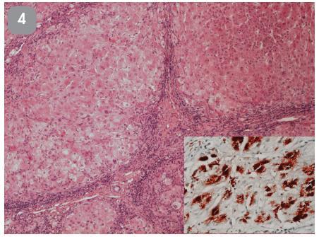 28-ročný muž s akútnym zlyhaním pečene na podklade dekompenzovanej cirhózy. Urgentná transplantácia pečene. Predoperačne zistené znížená sérová koncentrácia medi, znížený ceruloplazmín a zvýšené vylučovanie medi do moču. Histológia explantovanej pečene. HE, 40x, vložený detail – rhodanin.