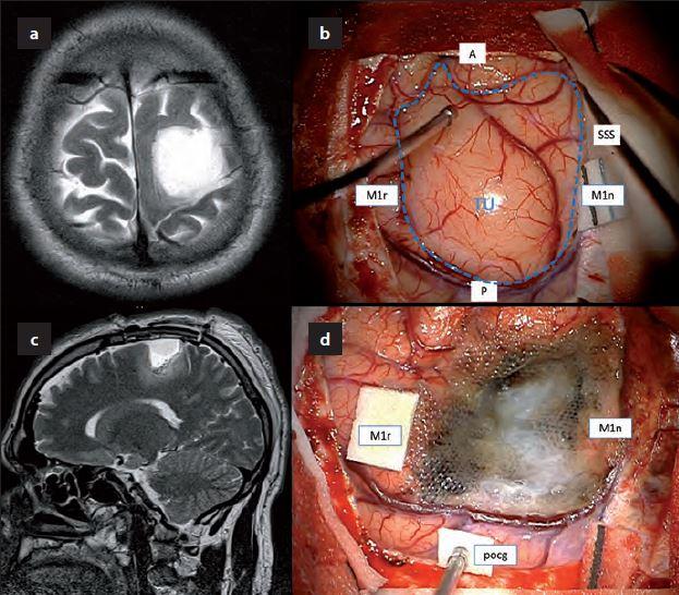 Nízkostupňový gliom v centrální krajině – MR obraz a pooperační situace.