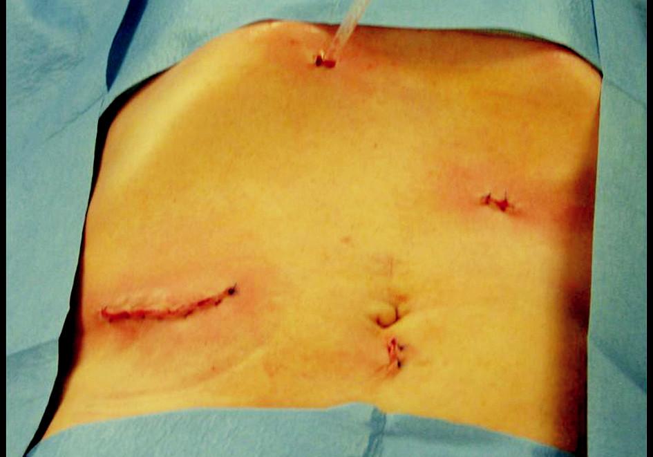Kosmetický výsledek na konci operace Fig. 4. Cosmetic outcomes at the end of the procedure