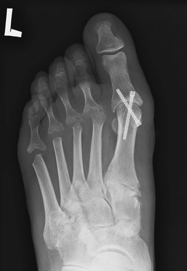 Stav po resekci hlaviček II. – V. MTT a po artrodéze MTP kloubu palce, fixace 2 šrouby.