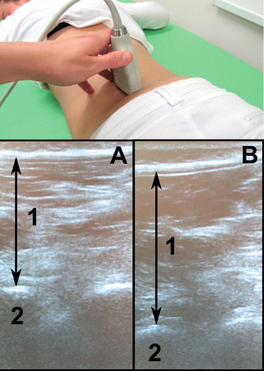 Nahoře poloha sondy při měření tloušťky musculus multifidus, dole odpovídající sonografický obraz se zachycením tloušťky musculus multifidus (1) a facetového kloubu L4/L5 (2) v klidu (A) a při zátěži (B).
