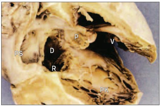 Pravá síň a komora v srdci s defektem septa síní typu ostium primum. Síňové septum je na bázi nedostatečné, ale prstence mitrální i trikuspidální chlopně jsou oddělené.