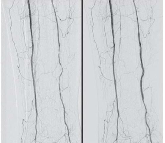 Obr. 5.3. DSA artérií PDK