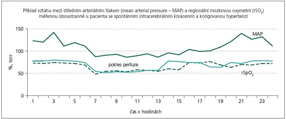 Průběh změn regionální mozkové symetrie na pravé a levé straně (rSO<sub>2</sub> dx., rSO<sub>2</sub> sin.) v závislosti na výšce středního krevního tlaku (MAP) u pacienta s korekcí hypertenzní krize při vzniku spontánního intracerebrálního krvácení.