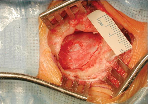 Obr. 1a. Key hole kraniotomie pro mikrovaskulární dekompresi trojklaného nervu