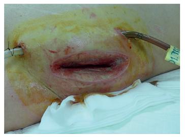 Přístup do retroperitonea z lumbotomie Fig. 4: Access to the retroperitoneum via lumbotomy