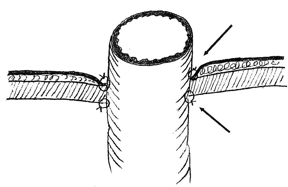 Schéma fixovania stomovaného čreva v kanáli brušnej steny Fig. 7. A scheme of fixation of the undone intestine in the abdominal wall channel