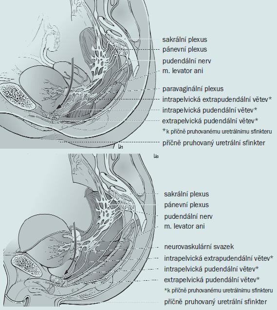 Obr. 2a, 2b. Inervace pánevních orgánů u ženy a u muže. Šipka označuje směr preparace na opačné straně, než je lokalizován tumor (během cystektomie). Otištěno se svolením.