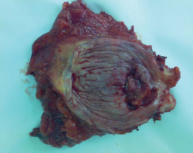 Preparát močového měchýře s tumorem a prostatou (25 g) po Millinově prostatektomii.
