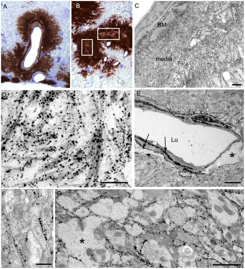 Immunological detection of PrPres in brain at both light and electron microscopic levels.