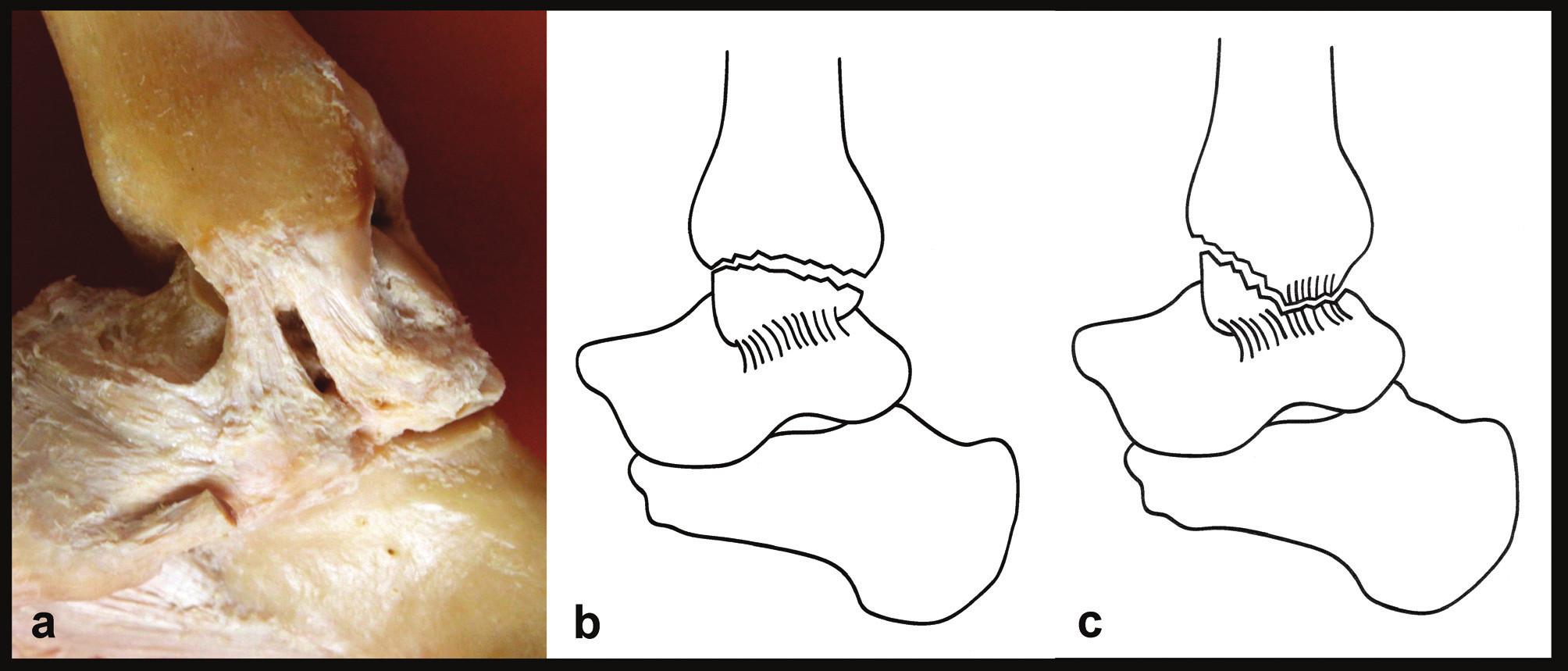 Rozdíl mezi zlomeninou vnitřního kotníku a kombinovaným osteo-ligamentózním poraněním a – anatomie mediálních struktur, jsou patrné obě části deltového vazu, b – zlomenina vnitřního kotníku, deltový vaz je intaktní, c – kombinované osteo-ligamentózní poranění, je odlomen přední kolikulus a přetržena tibio-talární část deltového vazu. Na volně adaptovaných Tornettových schématech [15] se pro zjednodušení upíná deltový vaz pouze na talus, což neodpovídá realitě.