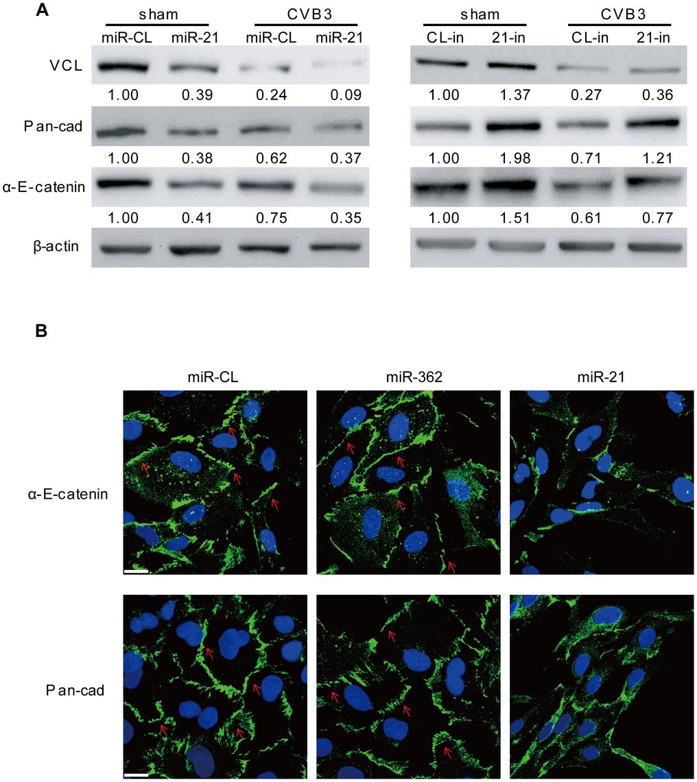 miR-21 interrupts fascia adherens during CVB3 infection.