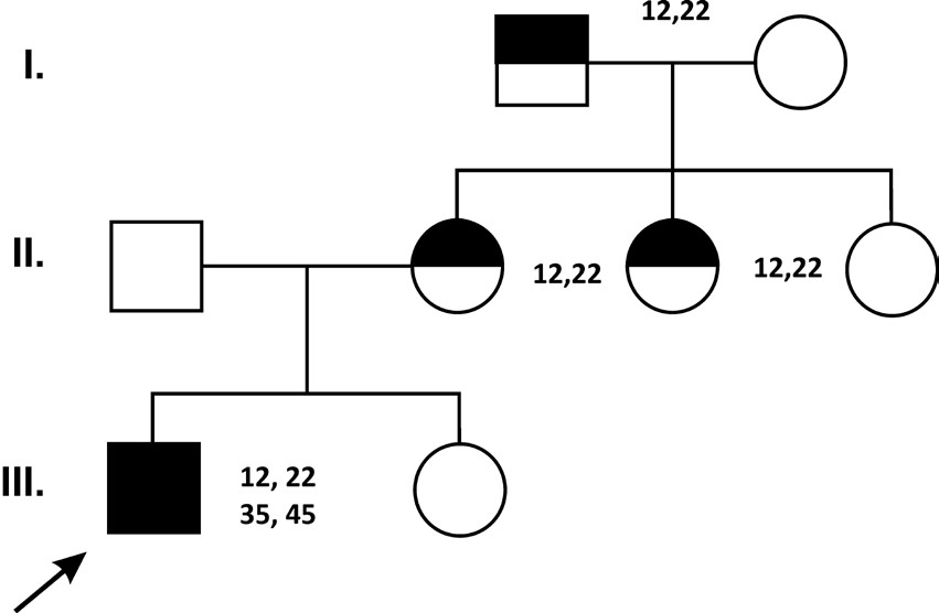 Výskyt hypodoncie horních laterálních řezákův první a druhé generaci (12,22 – podle mezinárodní číselné identifikace zubů) spojené s hypodoncií druhých dolních premolárů (35 a 45) u probanda
