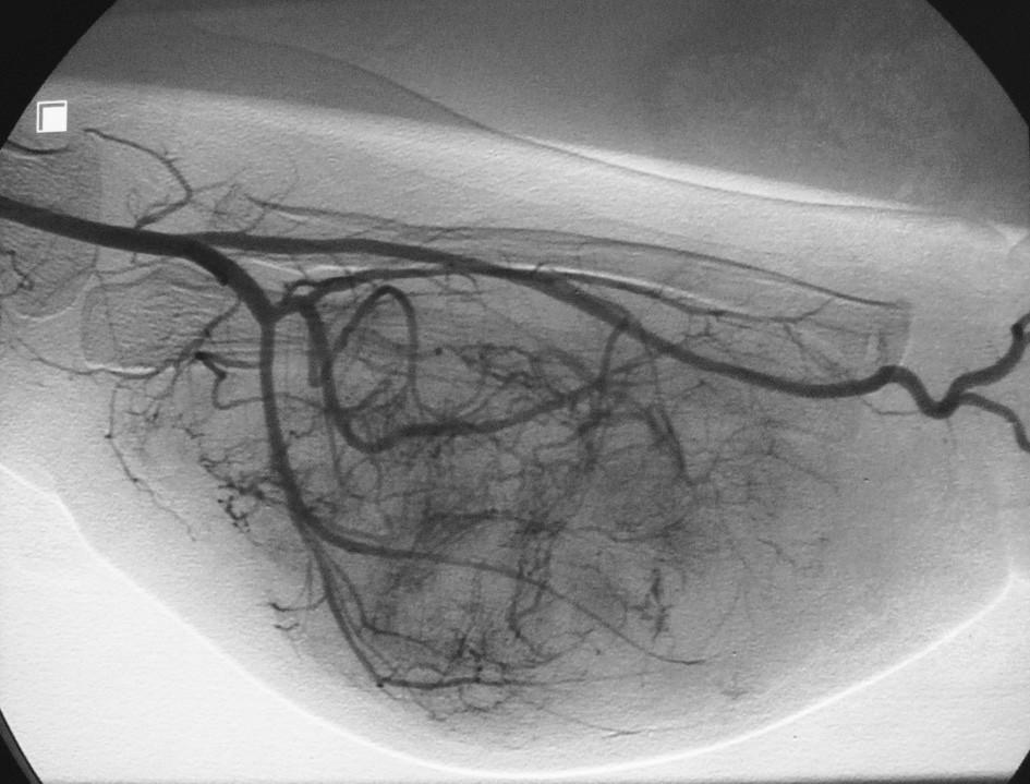 Fig. 2. Digital angiography